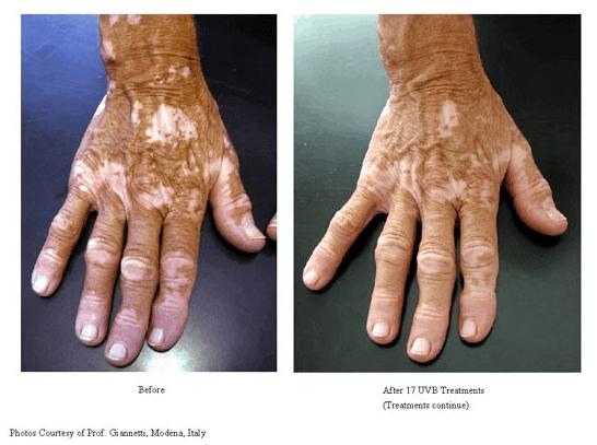 3Vitiligo Treatments-photo3