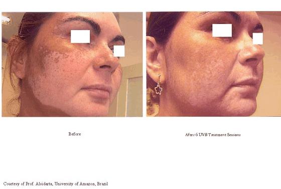 3Vitiligo Treatments-photo5