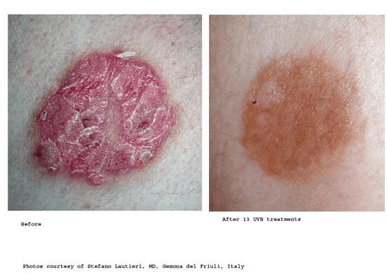 Psoriasis Treatment-photo10
