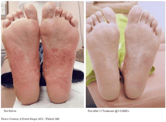 Psoriasis Treatment-photo3