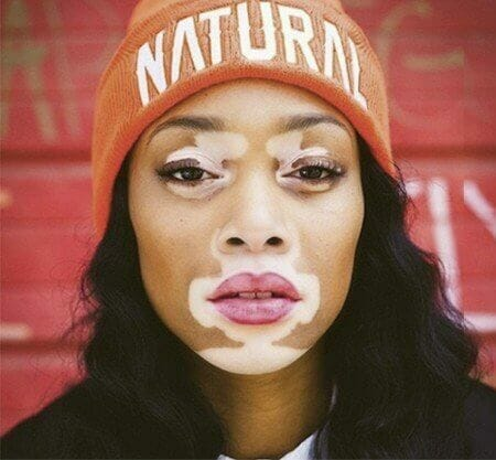 Source: Vitiligo Research Foundation