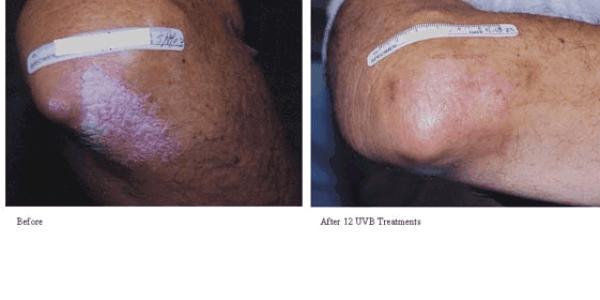 Psoriasis-Treatment-photo4