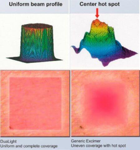 beam characteristics comparison chart