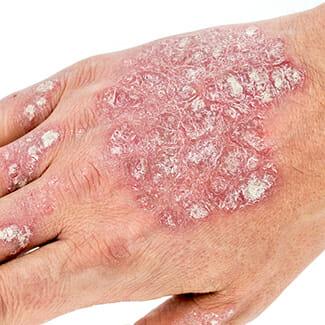 psoriasis-hands