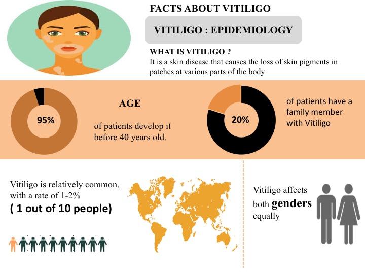 Facts About Vitiglio Graphic