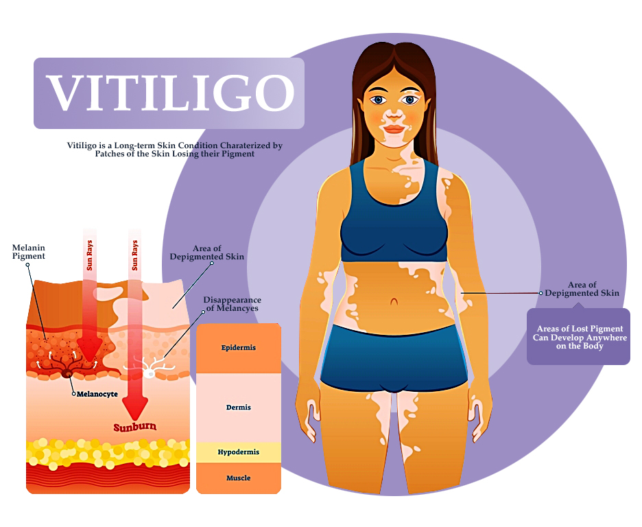DuaLight Areas Affected by Vitiligo Graphic