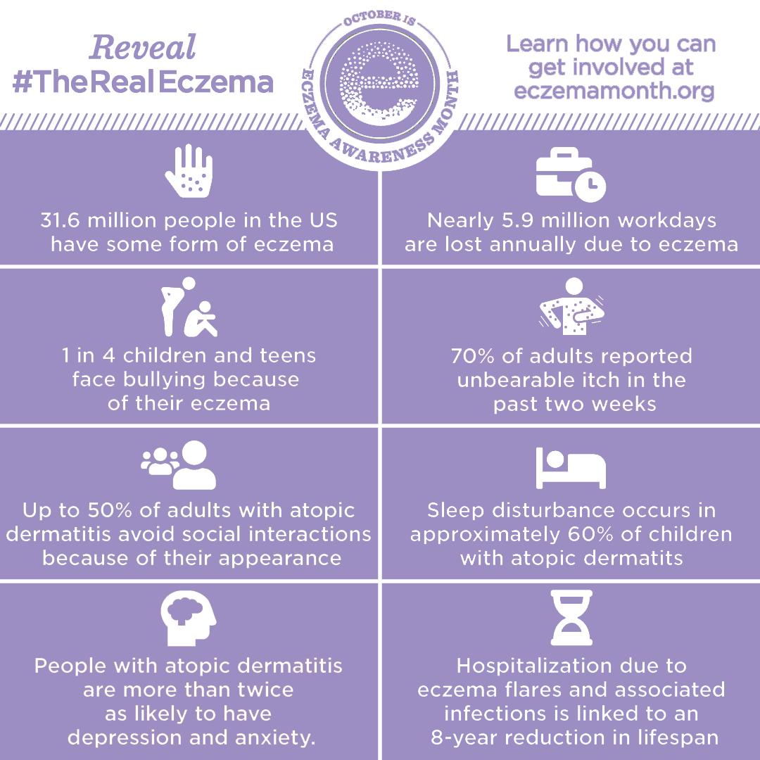 DuaLight Eczema Facts Graphic