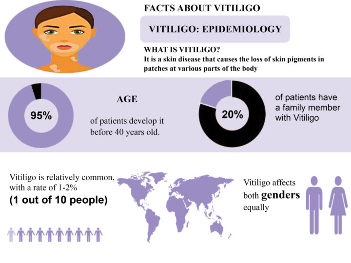 DuaLight Facts About Vitiglio Graphic